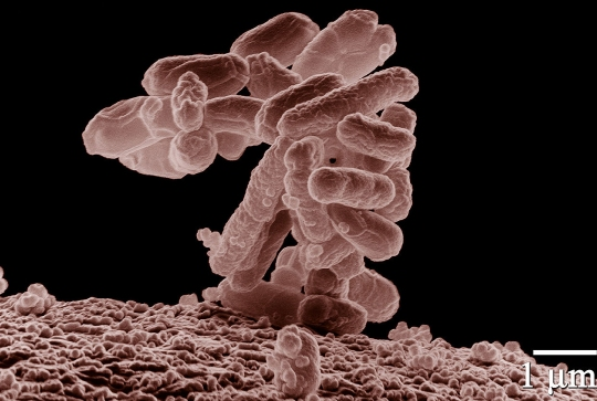 A cluster of the bacteria discussed in the article
